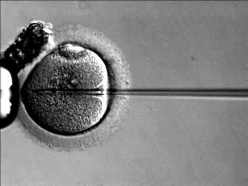 ICSI sperm injection into oocyte Courtesy: RWJMS IVF Laboratory